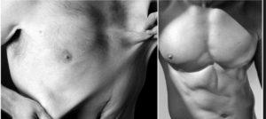 Perfect body vs imperfect body